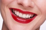 How you can avail a picture perfect smile