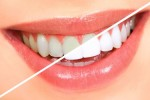 Household Help For A Whiter Smile
