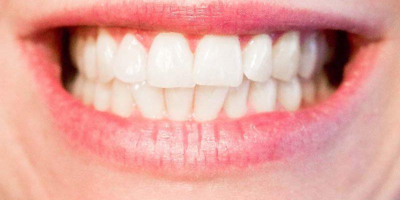 Teeth and Cavities